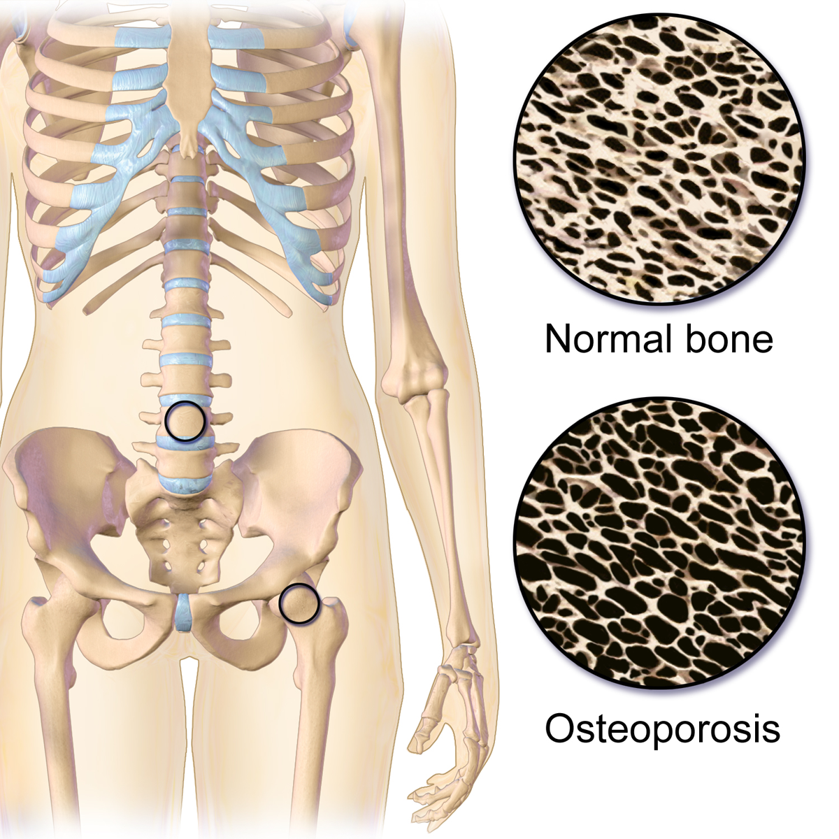 13++ Can you reverse osteoporosis after menopause ideas