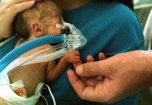 Rheumatoid arthritis may give Premature baby