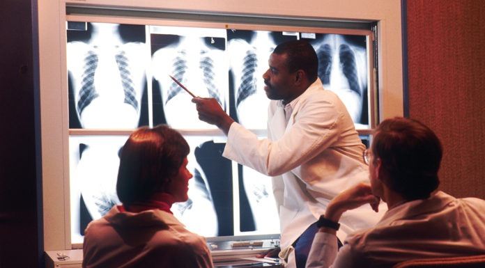 Radiologist examines chest x-rays