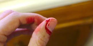 Hemophilia, blood bleeding