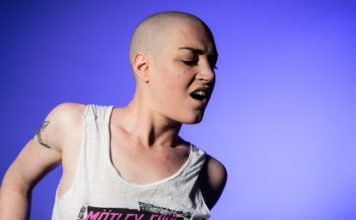 A woman suffering from baldness